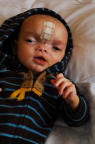 Dominic Pio Following Surgery